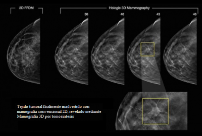 mamografía tecnología